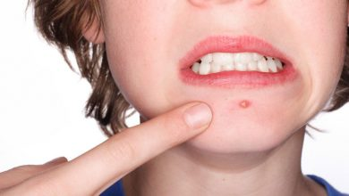 Photo of Acne Can Affect Teenagers and Adults – Try These Natural Remedies