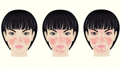 Photo of Triggers of Rosacea and 8 Remedies To Reduce More Serious Effects of This Skin Disorder
