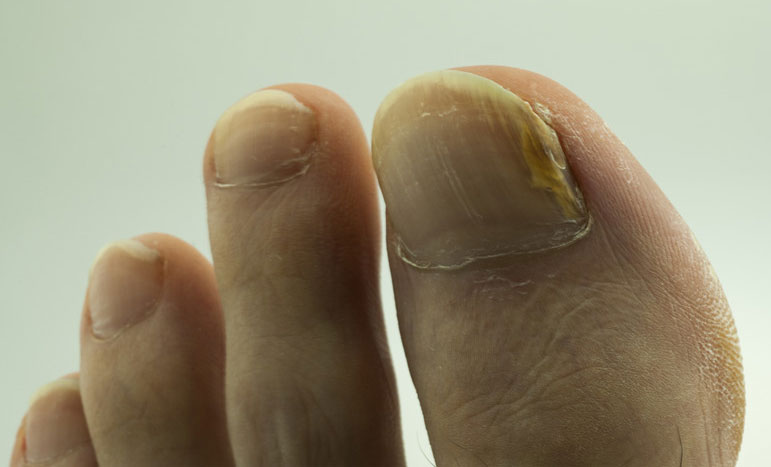 Photo of Natural Healing Methods For Most Common Foot Problems You May Have