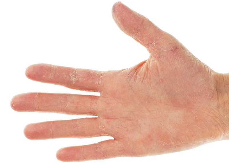 Photo of Natural Ways To Help You Manage and Treat Eczema