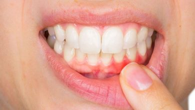Photo of Good Dental Hygiene – How To Take Care of Your Teeth and Gums Daily