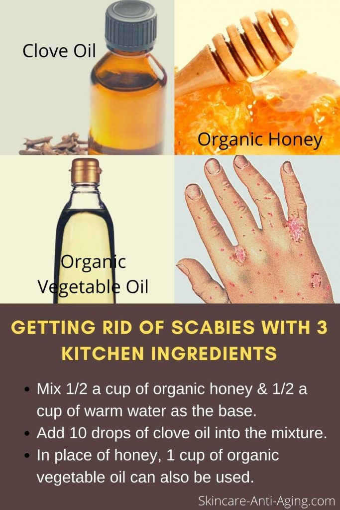 Treatment-For-Scabies
